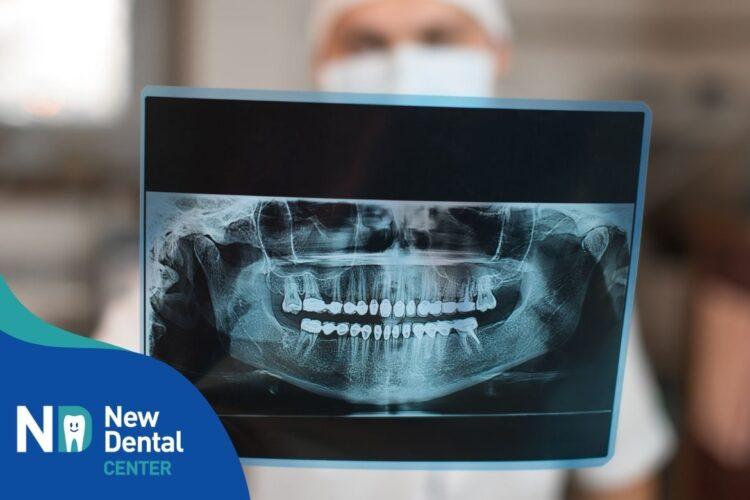 Ortopantomografia o più semplicemente 3D