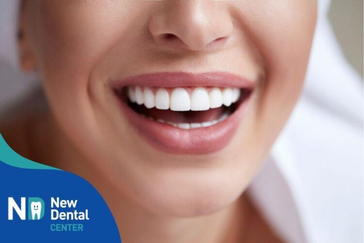Come sono fatti e a cosa servono i denti